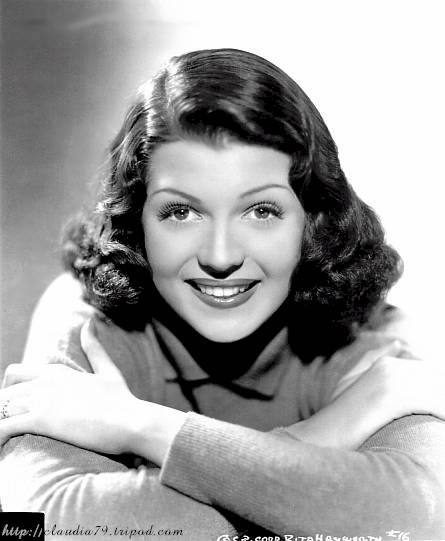 Rita Hayworth Hairline Before After Pic 4